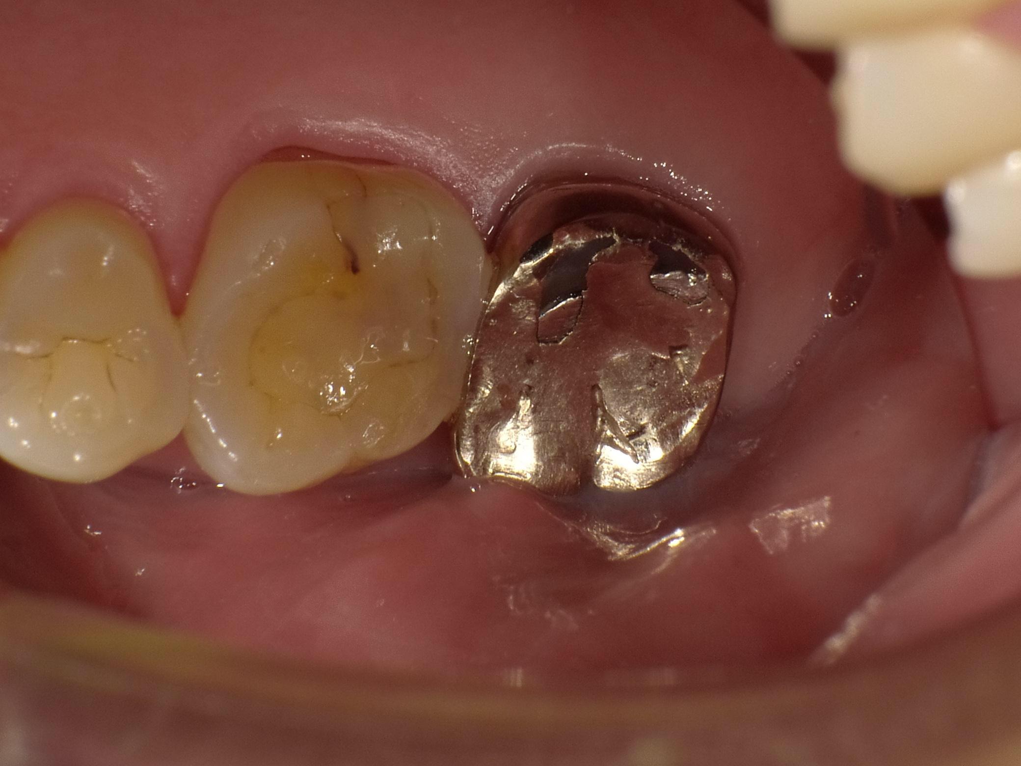 嚢胞 手術 歯根